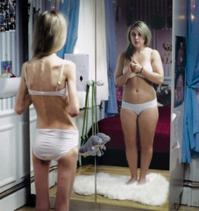 Eating Disorders sorted at Nina's Hypnotherapy